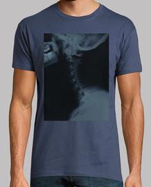 Radiografía...