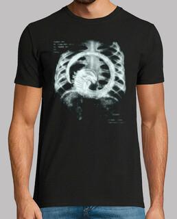 Radiografía alien
