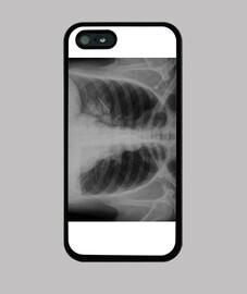 radiografía pulmonar Horizontal